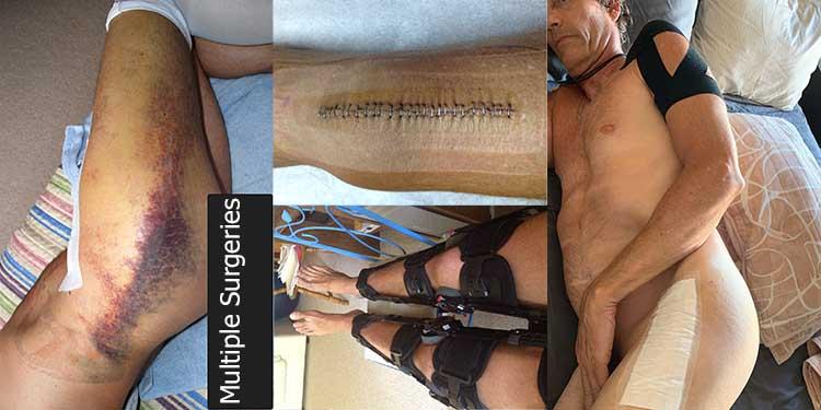 four_surgeries